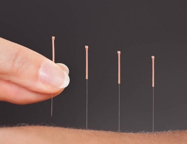 Acupuncture Therapy Treatment